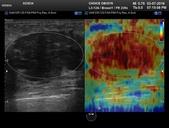 乳房腫瘤:023634_0004.JPG